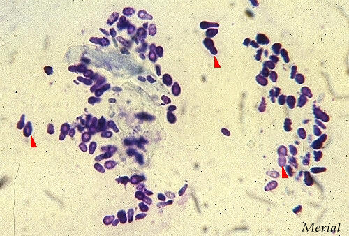 dog ear cytology slide yeast